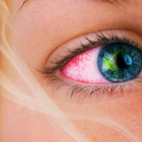 Why Does Weed Make Your Eyes Red (and How to Get Rid of Red Eyes)