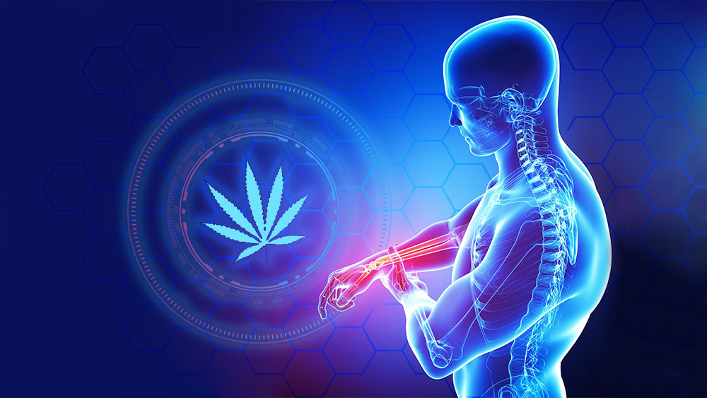Marijuana for arthritis