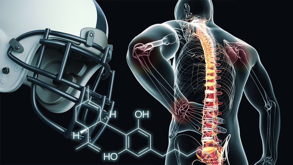 Cannabis-pain-relief-NFL