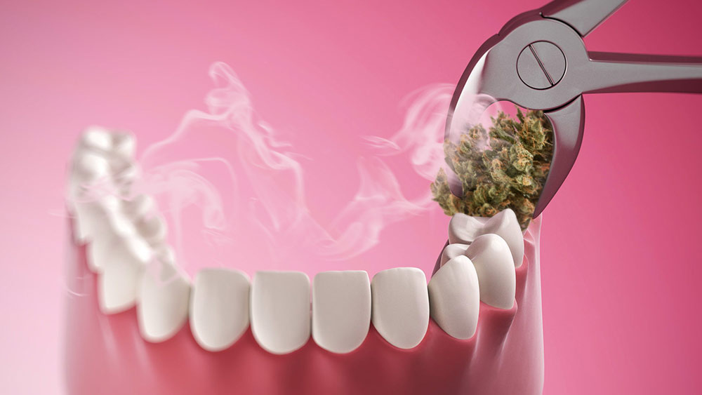 Effect of smoking weed on teeth