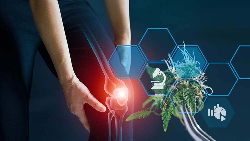 Cannabinoids and inflammation
