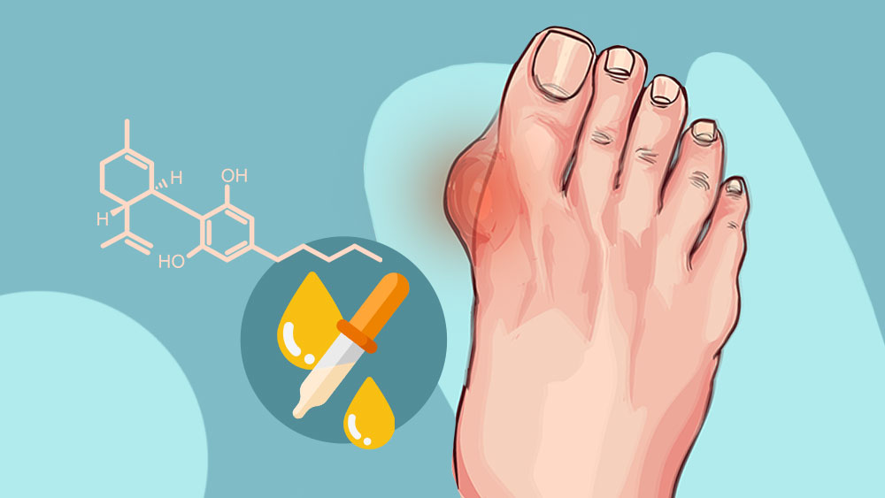 CBD-for-gout